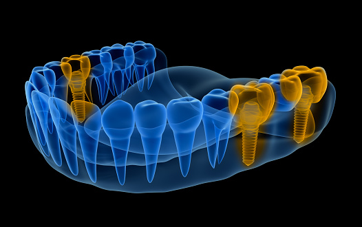 x-ray image of Multiple Tooth Implant